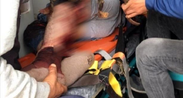 Yaşlı Çiftçi Çapa Makinesine Bacağını Kaptırdı